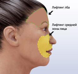 Эндоскопический лифтинг лица