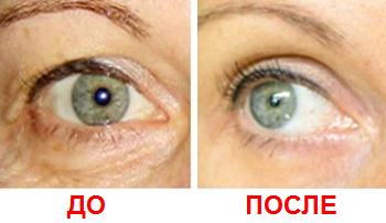 От чего бородавки вокруг глаз